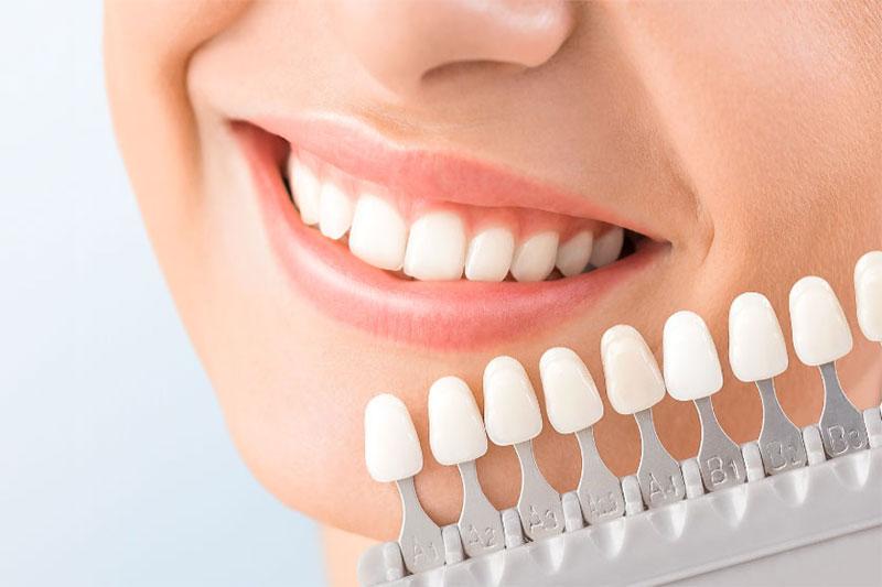 Răng sứ có màu sắc và hình dáng hài hòa như răng thật