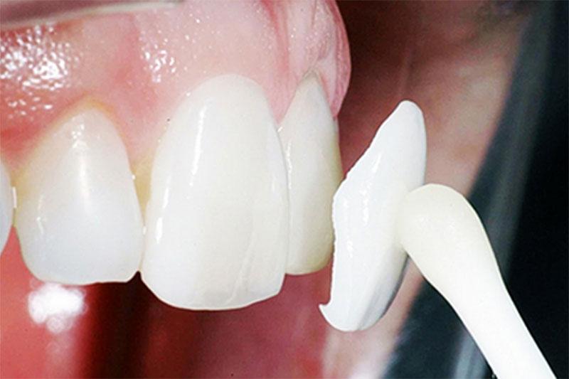 Dán sứ chỉ cần mài cùi răng với một lớp siêu mỏng