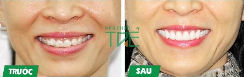 Bọc răng sứ cho răng sứ mẻ đạt thẩm mỹ cao