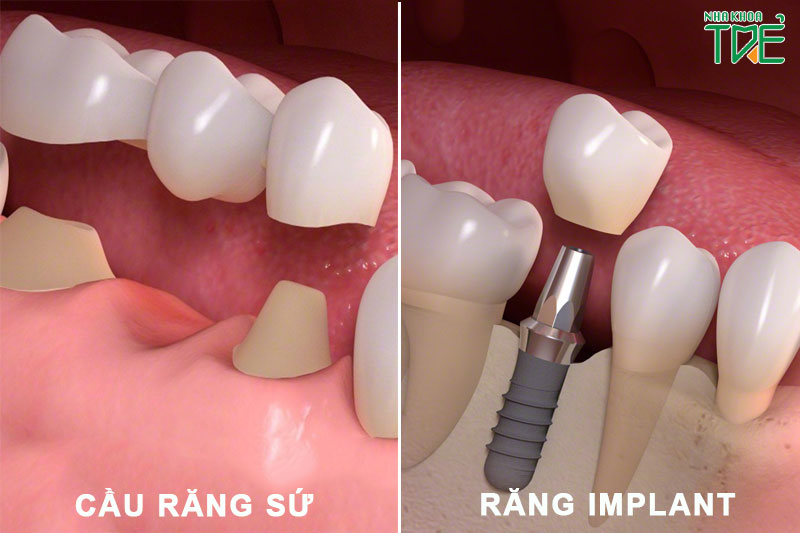 So sánh làm cầu răng sứ và trồng răng Implant loại nào tốt