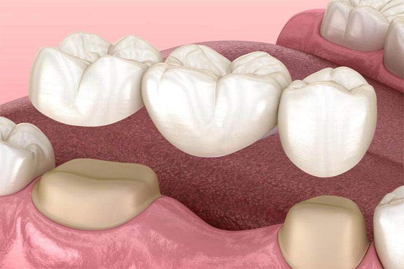Cầu răng sứ được chỉ định trong trường hợp mất một răng hoặc một vài răng cạnh nhau