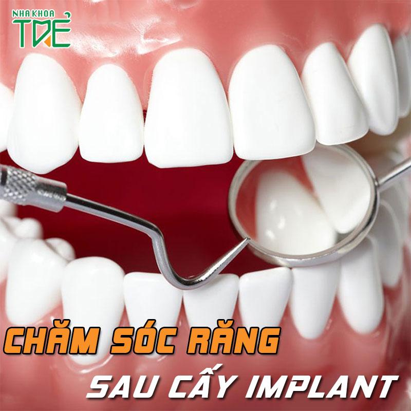 Cách chăm sóc răng sau cấy Implant và những lưu ý cần thiết