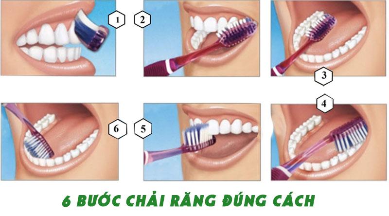 Chăm sóc răng sau cấy Implant với 6 bước chải răng đúng cách