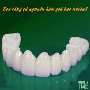 Chi phí bọc răng sứ nguyên hàm bao nhiêu?