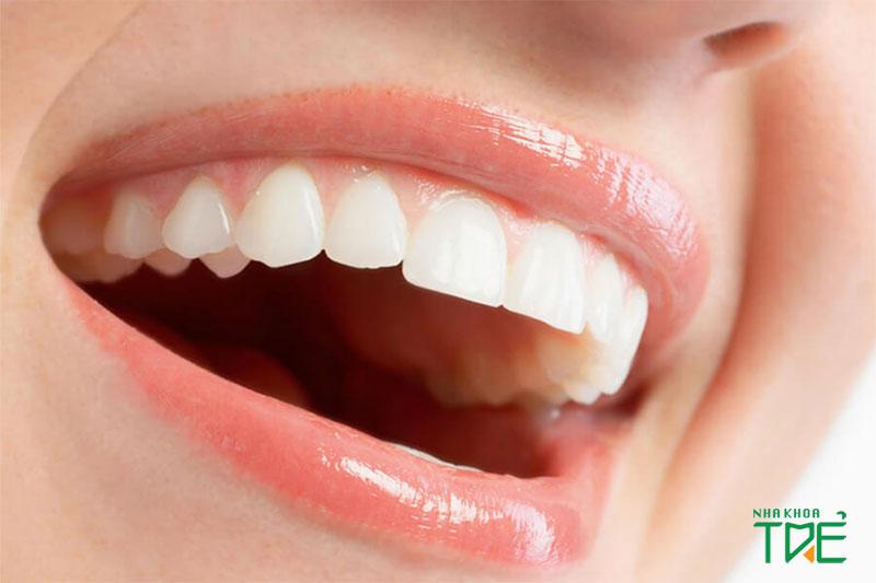Bọc răng sứ nguyên hàm mang đến hàm răng đều đẹp, tự nhiên