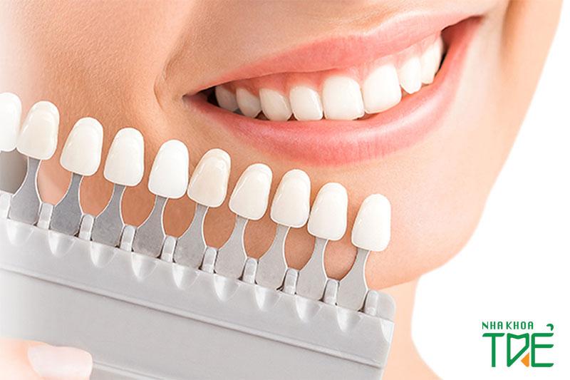 Có nhiều loại răng sứ thẩm mỹ để bạn lựa chọn với mức giá khác nhau