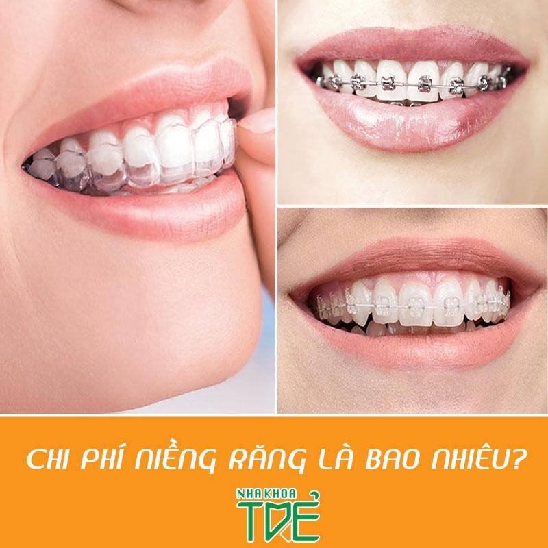 Chi phí niềng răng và yếu tố quyết định mức giá