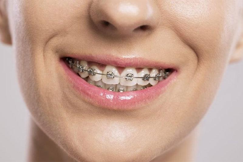 Niềng răng mắc cài kim loại đạt hiệu quả chỉnh nha cao