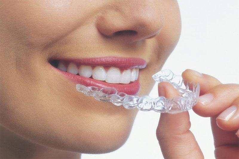 Khay niềng răng trong suốt đạt tính thẩm mỹ tuyệt đối và thuận tiện cho người dùng