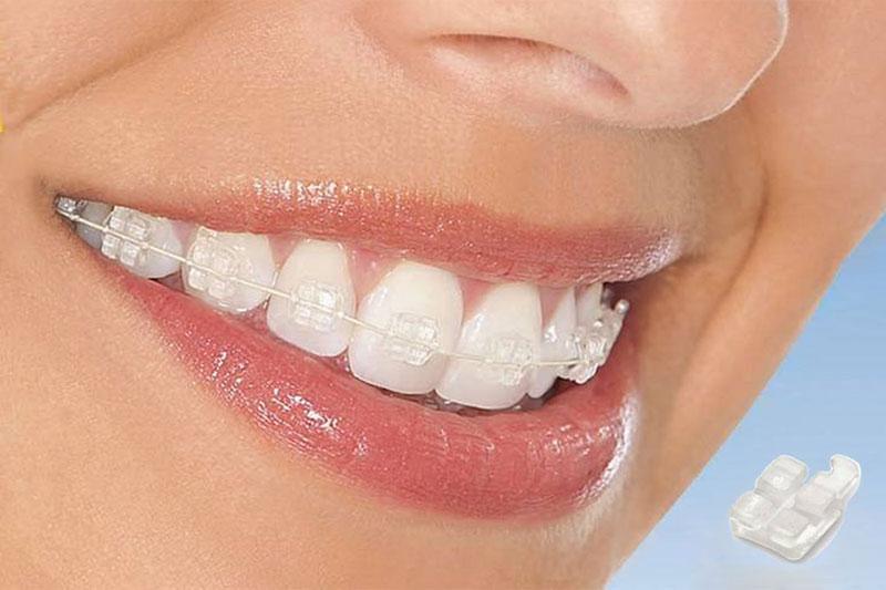 Niềng răng với hệ thống mắc cài bằng sứ có tính thẩm mỹ cao hơn