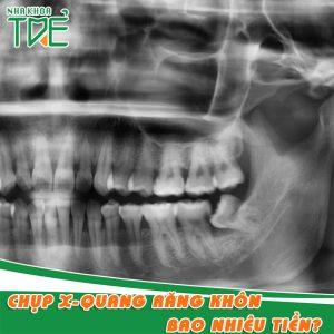 Chụp X - quang răng khôn có cần thiết không? Giá Bao nhiêu tiền?