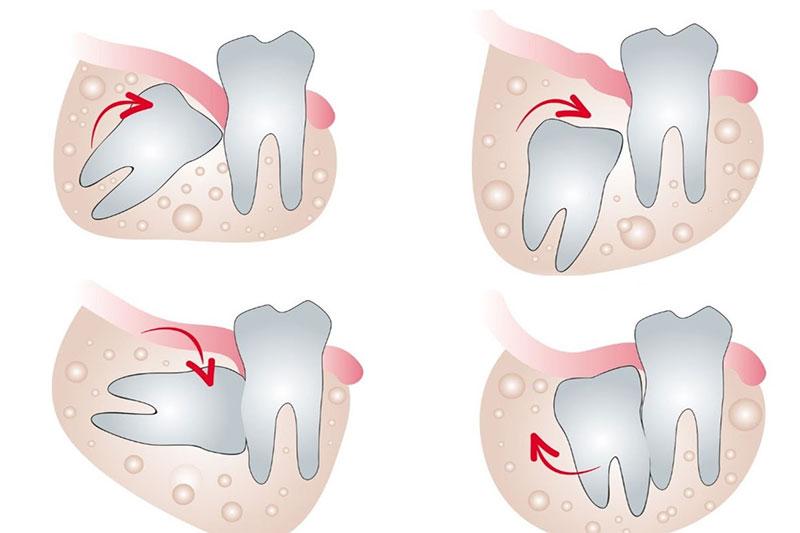 Các trường hợp răng khôn mọc lệch, mọc ngầm gây nguy hại cho sức khỏe