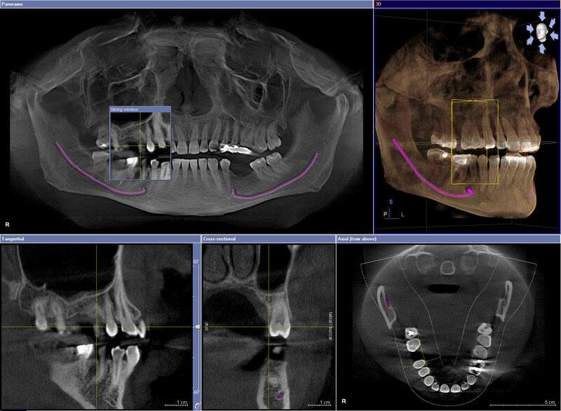 Chụp X -quang hiện đại cho hình ảnh đa chiều
