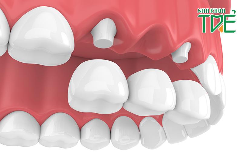 Có nên làm cầu răng số 7 hay không?
