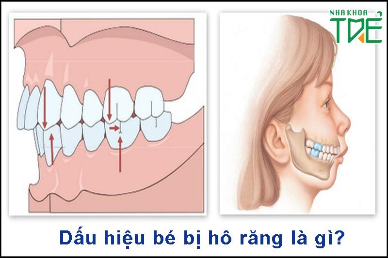 Dấu hiệu bé bị hô răng là gì?