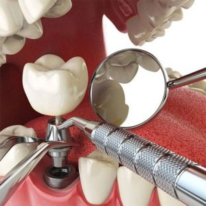 4 Điều kiện để trồng răng Implant an toàn, tránh biến chứng nguy hiểm
