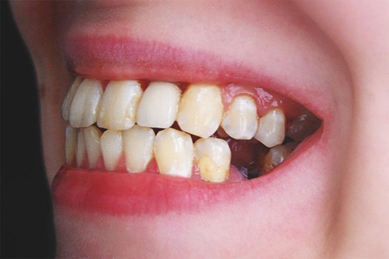 Mất răng khi đã có cấu trúc xương hàm ổn định mới có thể trồng răng Implant