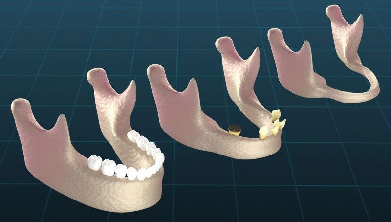 Mô phỏng tình trạng tiêu xương hàm do mất răng lâu năm