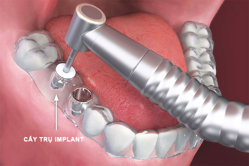 Máng hướng dẫn cấy trụ Implant độ chuẩn xác cao