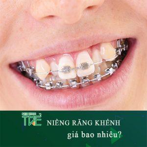 Giá niềng răng khểnh bao nhiêu tiền?
