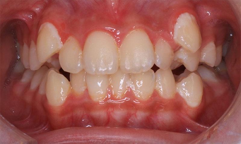 Trường hợp răng khểnh mọc sai lệch cần niềng răng sớm để bảo vệ sức khỏe răng miệng