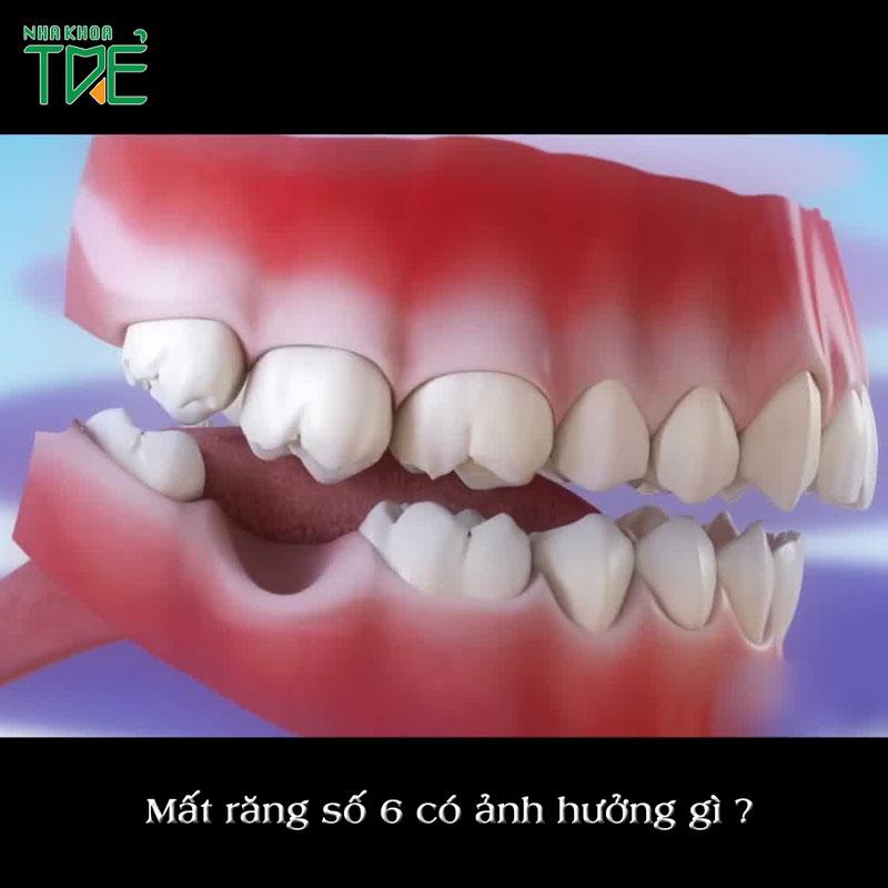 Hậu quả mất răng số 6 sớm? Trồng răng khắc phục mất răng hàm như thế nào?
