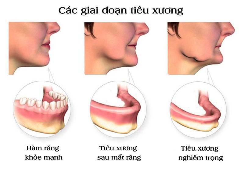 Hậu quả mất răng số 6 là làm tiêu xương hàm, lão hóa sớm