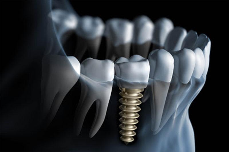 Cấy ghép Implant là phương pháp phục hình được nhiều khách hàng tin dùng