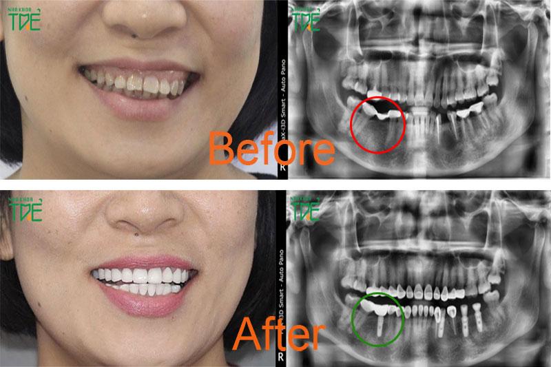 Cấy ghép Implant phục hình răng số 6 tại Nha khoa Trẻ