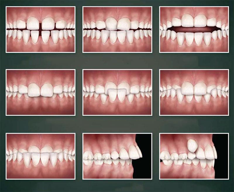 Invisalign điều trị được hầu hết các sai lệch của răng và khớp cắn