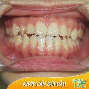 Khớp cắn đối đầu là gì? Niềng răng khắc phục khớp cắn đối đầu hiệu quả