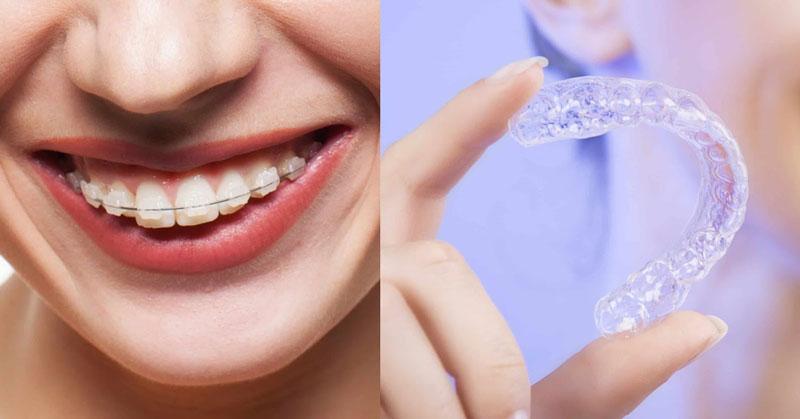 Niềng răng mắc cài và niềng răng trong suốt