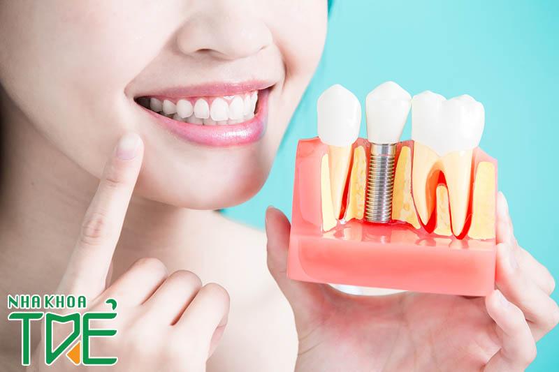 """Giải đáp tất tần tật thắc mắc về """"lắp răng Implant"""""""