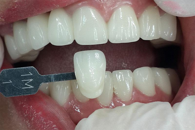 Làm răng sứ phục hình khiếm khuyết của răng, mang lại hàm răng đều đẹp