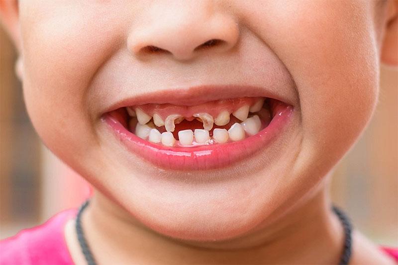 Mất răng sữa sớm ảnh hưởng rất lớn đến khả năng phát âm của trẻ, đặc biệt là vị trí răng cửa