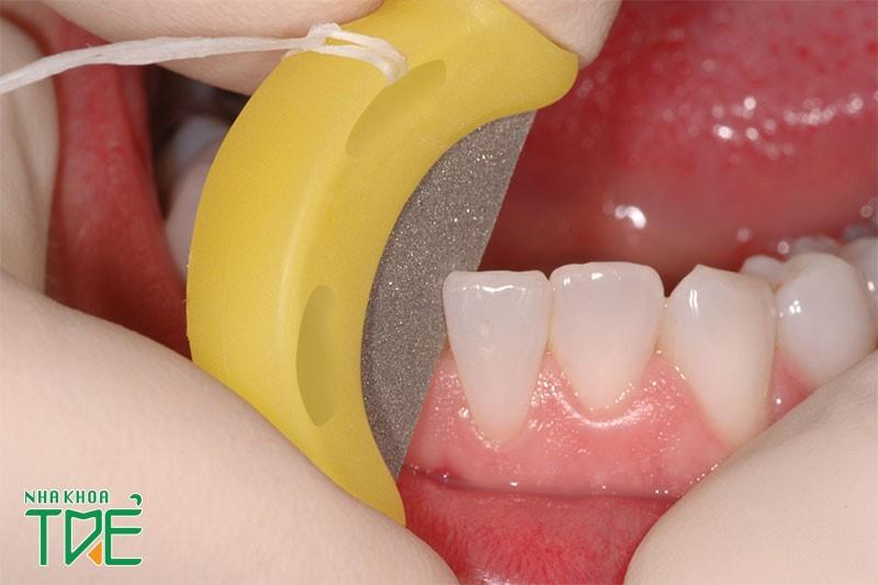 Mài kẽ răng để niềng có ảnh hưởng gì không?