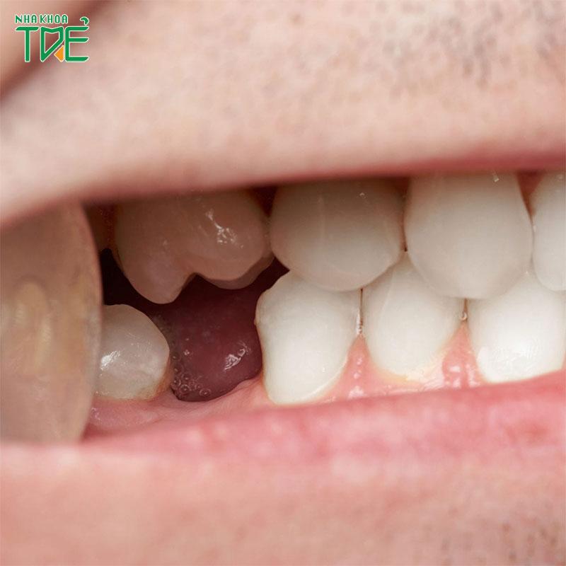 Mất răng số 6 có niềng răng được không?