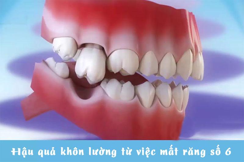 Mất răng số 6 gây ra nhiều hậu quả nghiêm trọng cho sức khỏe răng miệng
