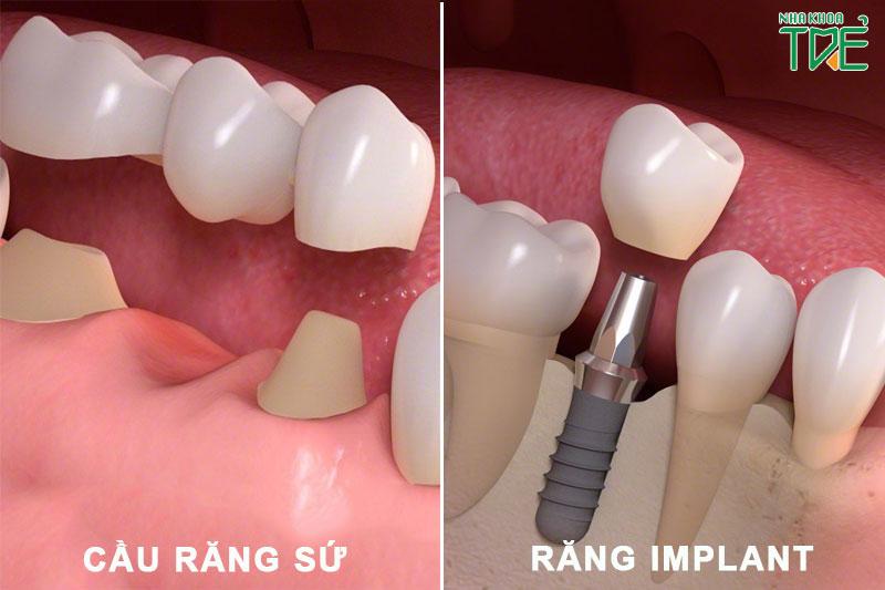 Trồng răng giả bằng cầu răng sứ hoặc Implant để phục hình răng hiệu quả
