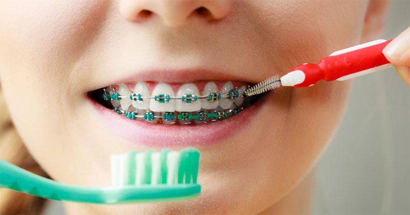 Nên sử dụng bàn chải lông mềm và bàn chải kẽ vệ sinh răng miệng khi niềng