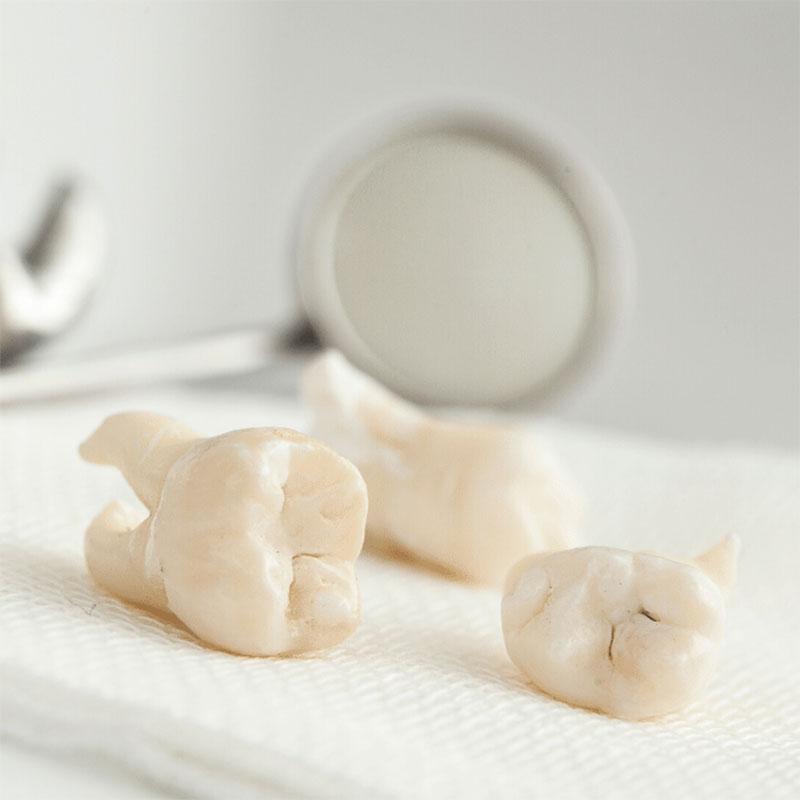 Nhổ 4 răng khôn cùng lúc có được không?