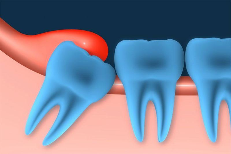 Răng khôn mọc gây viêm lợi trùm răng khôn, ảnh hưởng đến sức khỏe răng miệng