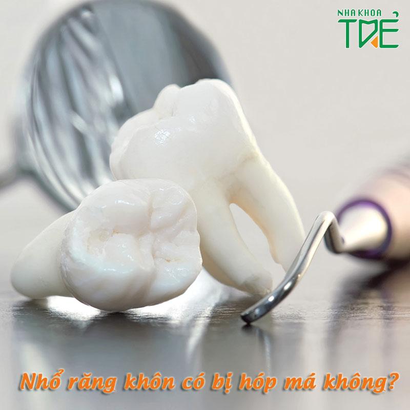 Nhổ răng khôn có bị hóp má không?