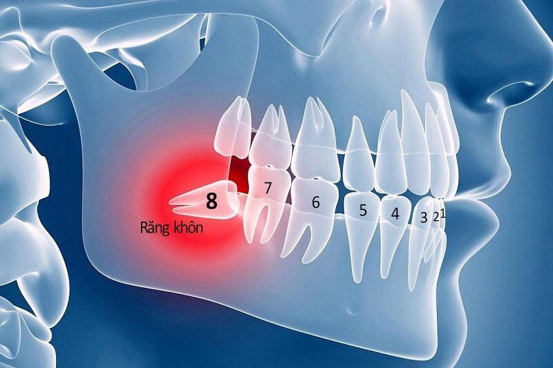 Răng khôn gây ra nhiều biến chứng nguy hiểm nên cần phải nhổ bỏ