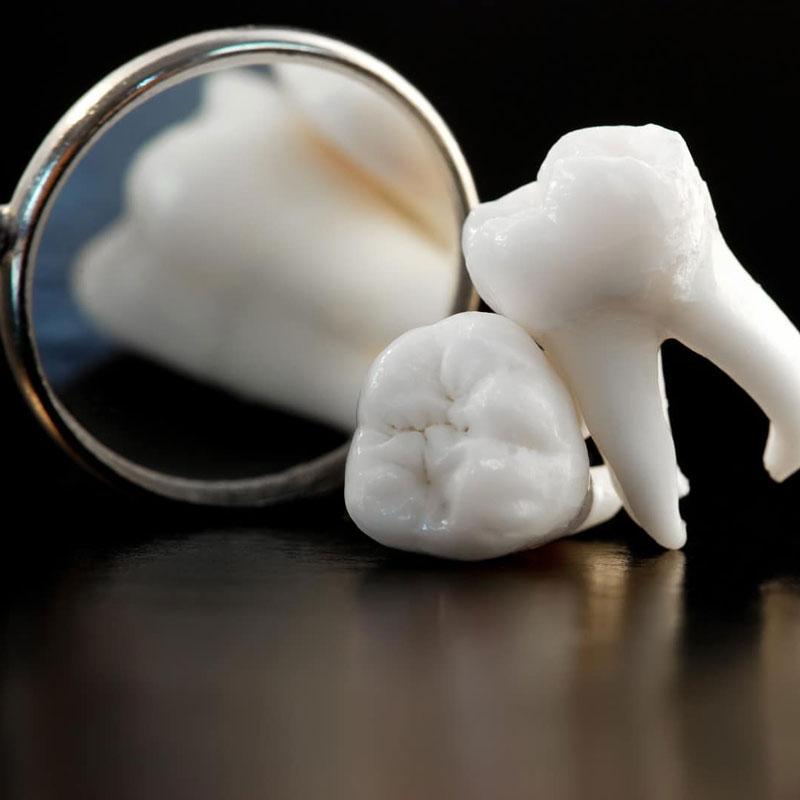 Nhổ răng khôn có đau không? Nhổ răng khôn cần lưu ý những gì?