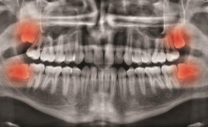Hình ảnh X - quang răng khôn mọc lêch đâm xiên vào răng số 7 cần nhổ bỏ