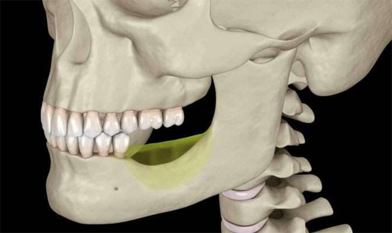 Nhổ răng khôn làm mặt nhỏ lại do bị tiêu xương khi phải nhổ cả răng kế cận