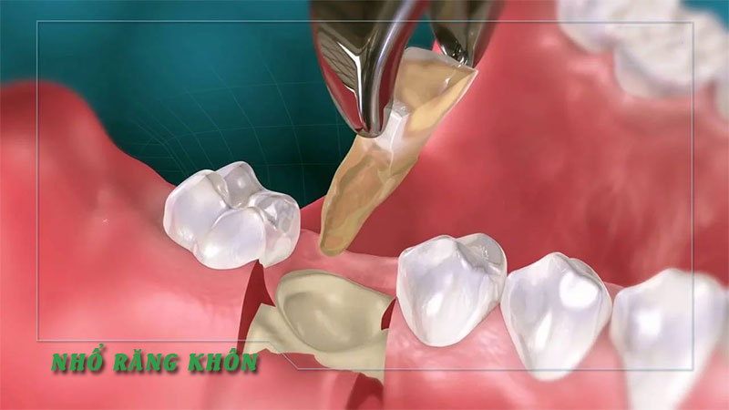 Nhổ răng khôn ở đâu tốt, an toàn tại Hà Nội