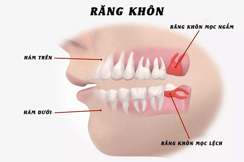 Răng khôn mọc ngầm, mọc lệch gây ra nhiều biến chứng nguy hiểm