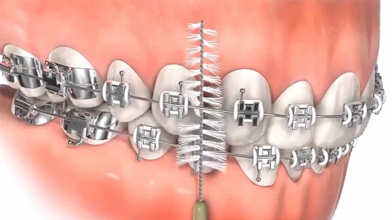 Vệ sinh răng niềng với bàn chải kẽ để làm sạch hệ thống mắc cài
